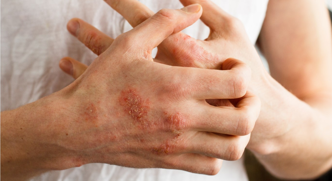 itchy, sore, red eczema on hands