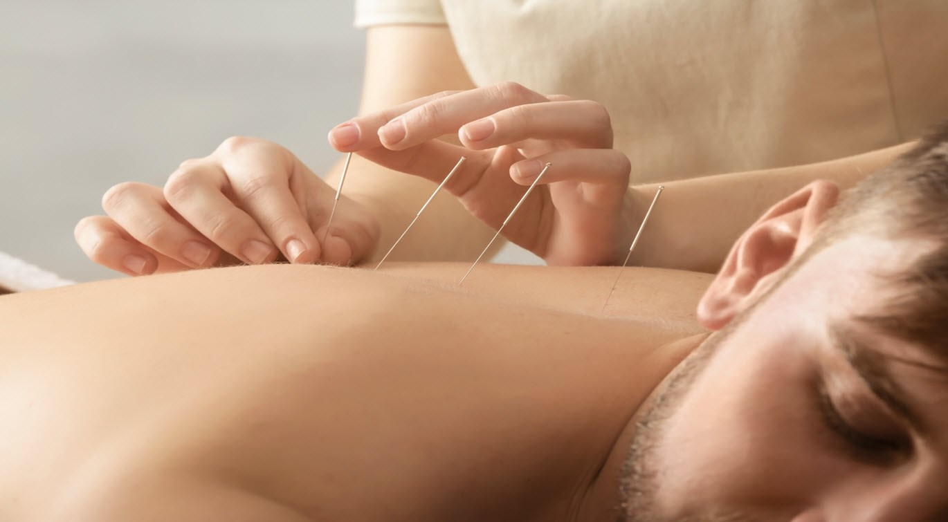 patient receiving acupuncture treatment
