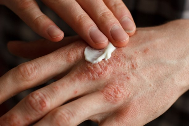 applying cream to itchy eczema